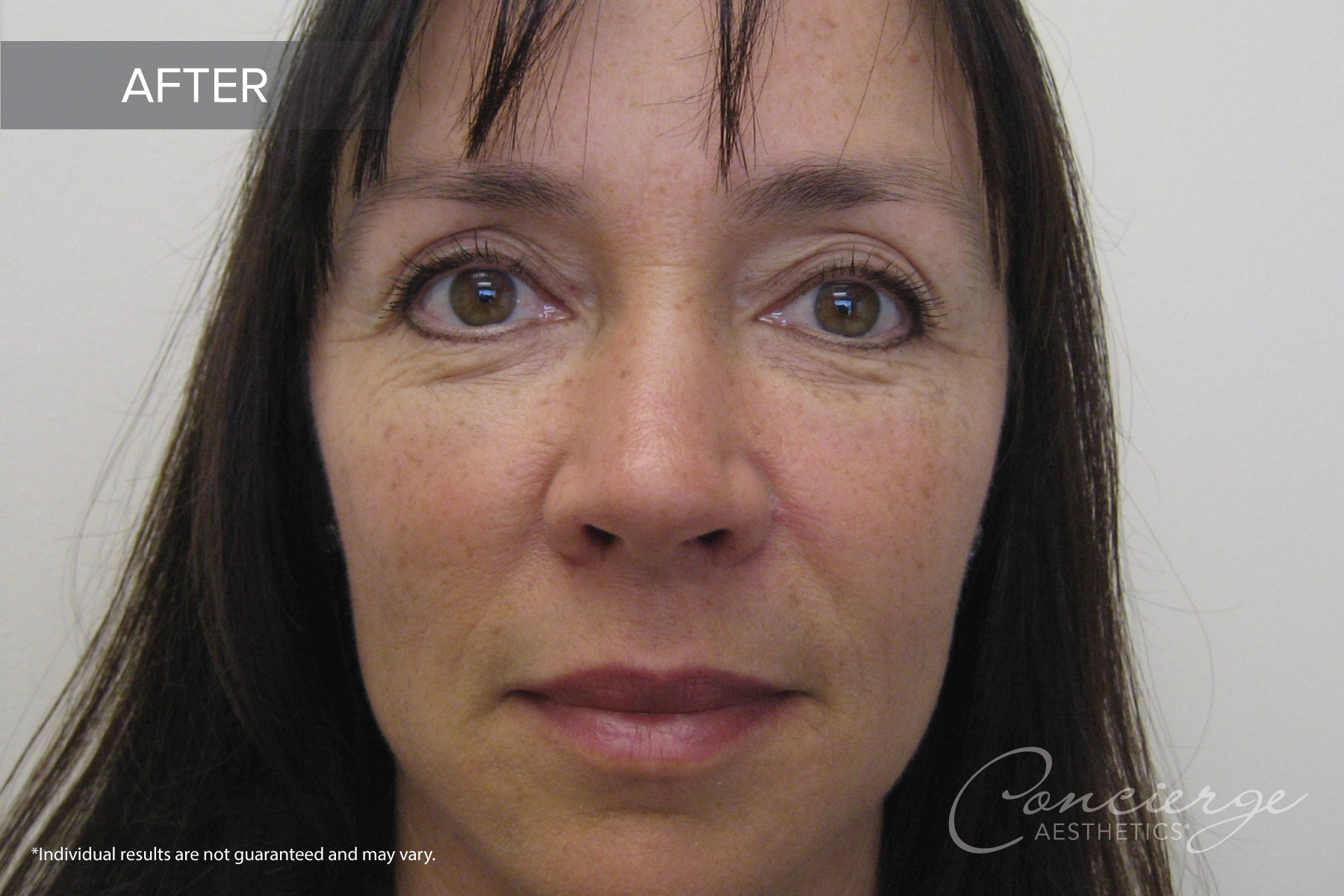 Before and After Photos - Juvederm Ultra - Under the Eyes
