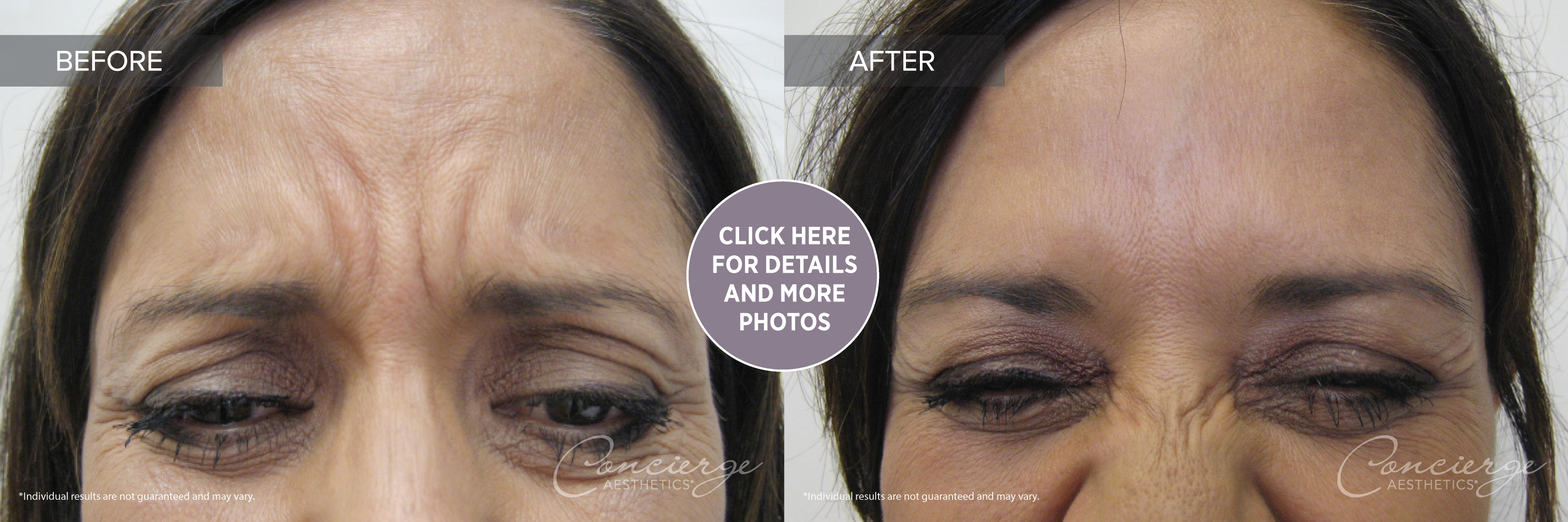 Botox Cosmetic - Before and After Photos