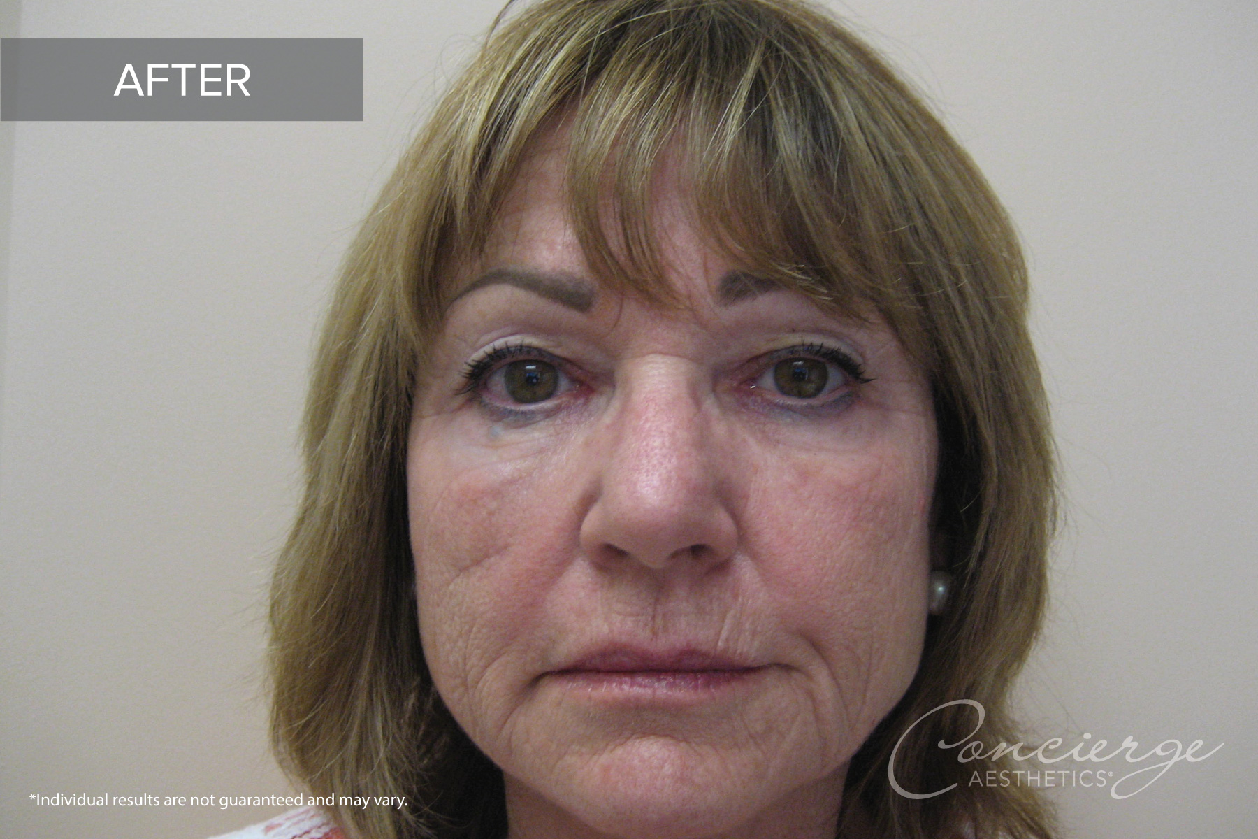 Botox Cosmetic and Juvederm - Before and After Photos