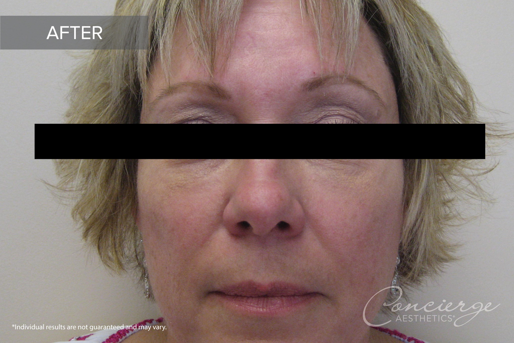 Juvederm Ultra and Voluma - Before and After Photos