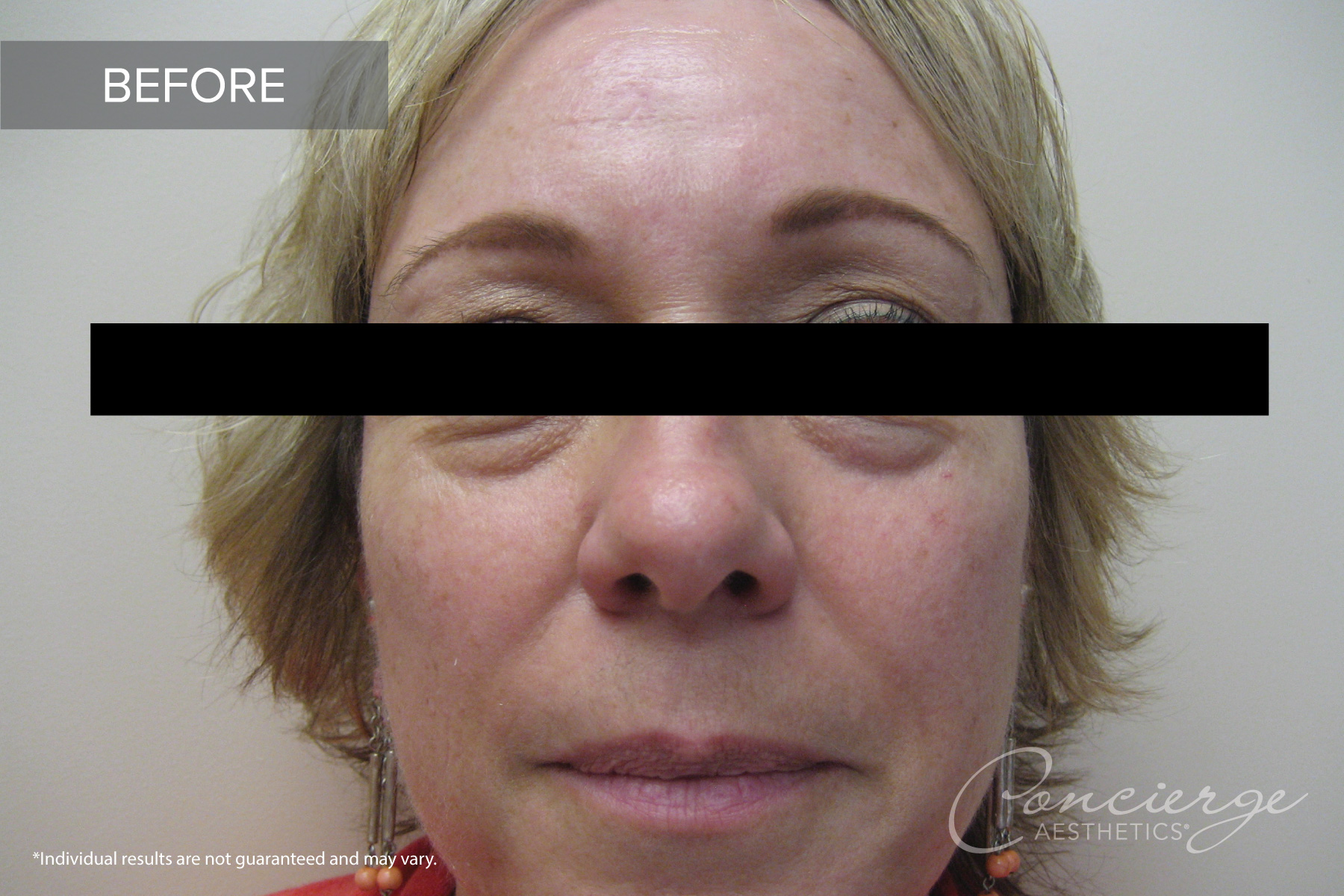 Before and After - Juvederm | Concierge Aesthetics, Irvine (Orange)