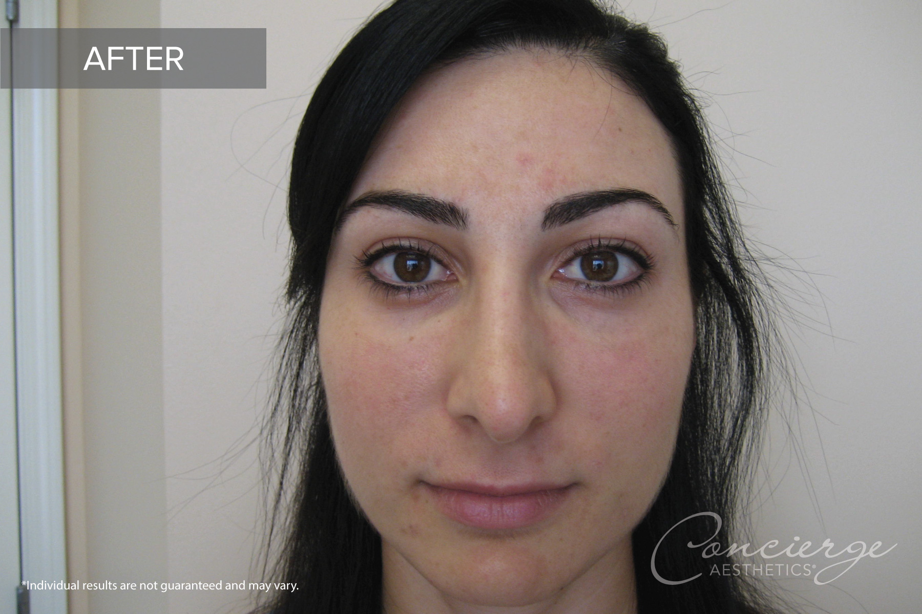 Juvederm Ultra - Under the Eyes - Before and After Photos