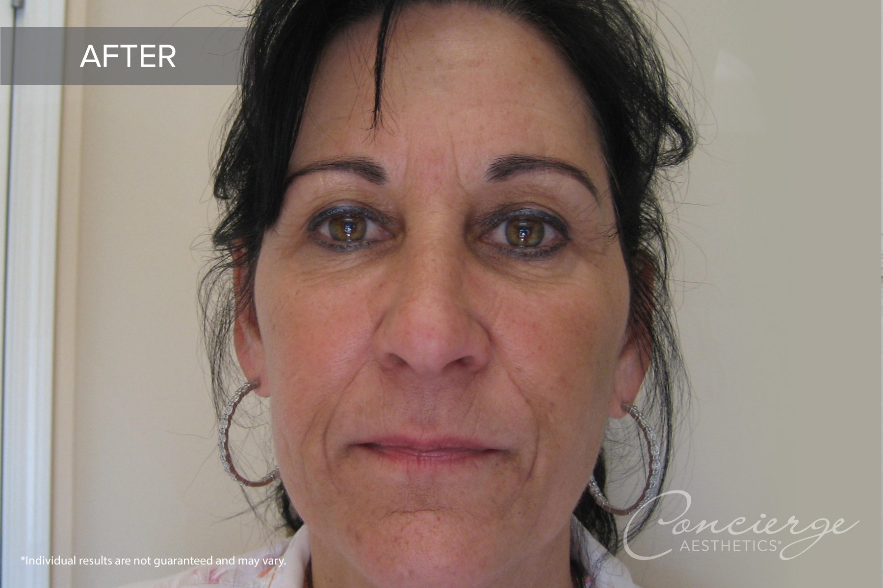 Juvederm and Botox Cosmetic - Before and After Photos