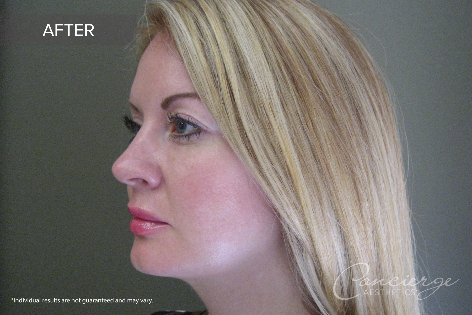 Kybella - Before and After Photos