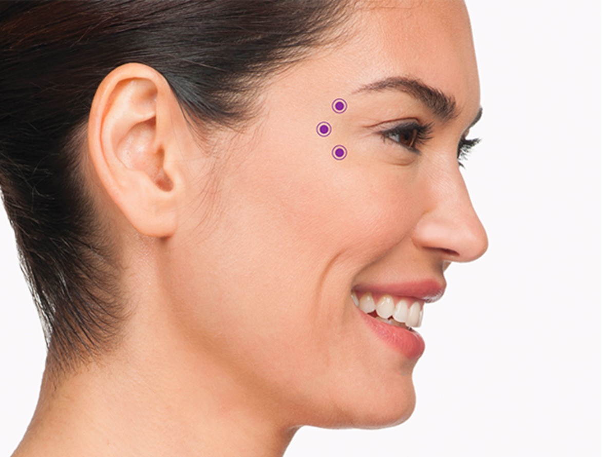Botox cosmetic irvine crows feet frown lines concierge aesthetics for the crows feet area your specialist will inject 3 areas of the orbicularis oculi the muscle that frames the side of the eye solutioingenieria Image collections