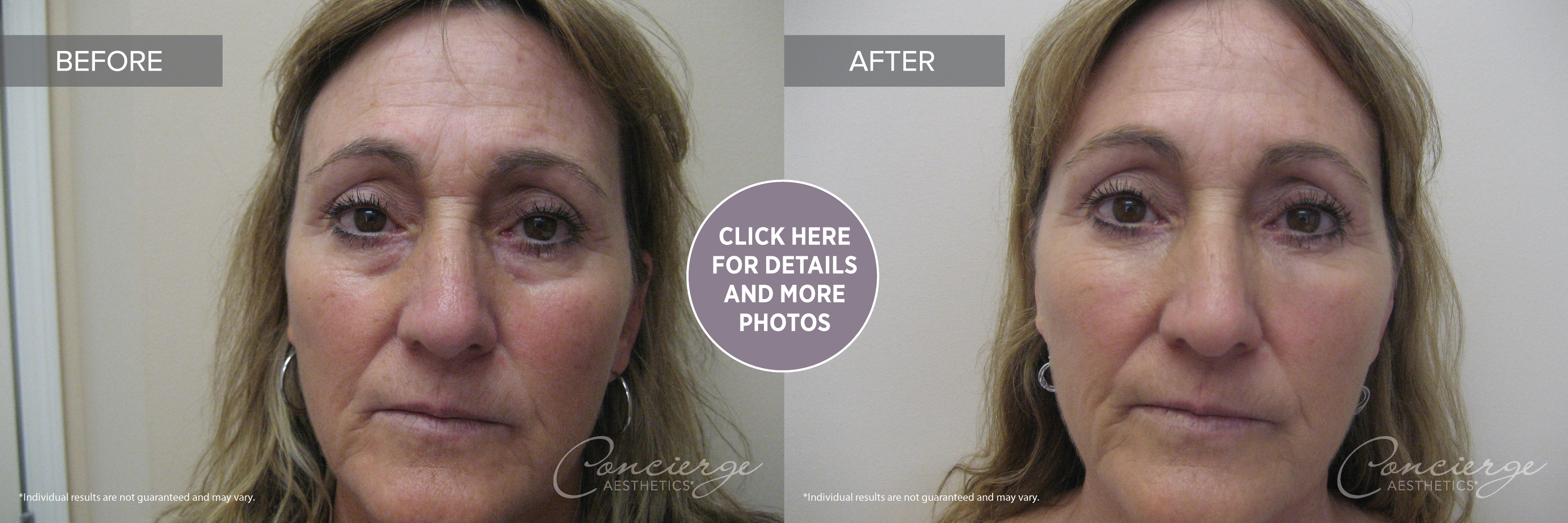 Before and After Patient Photo - Botox Cosmetic and Juvederm