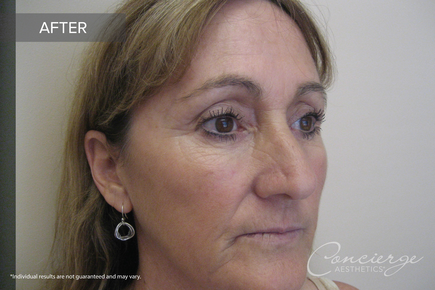 Juvéderm Ultra and Botox Cosmetic - Before and After Photos