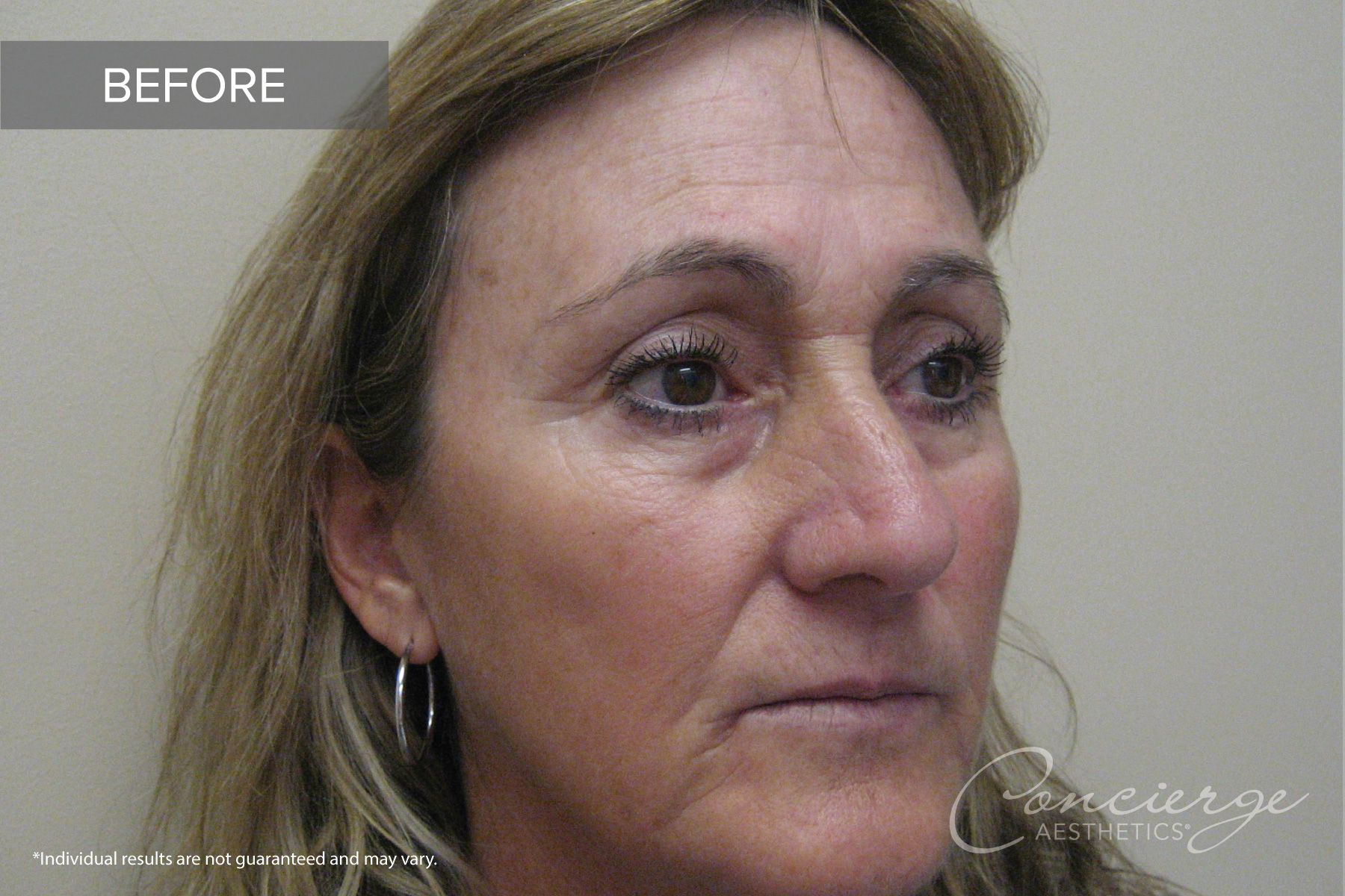 Before and After - Juvederm | Concierge Aesthetics, Irvine