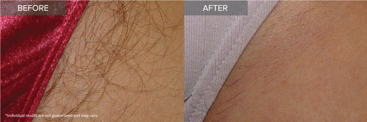 Remove Unwanted Hair Laser Hair Removal Irvine