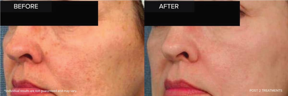 Laser Ipl Photofacial Treat Sun Damage Concierge
