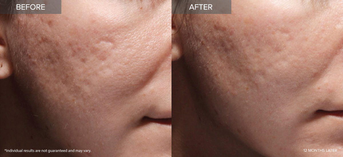 Bellafill Acne - Irvine - Concierge Aesthetics