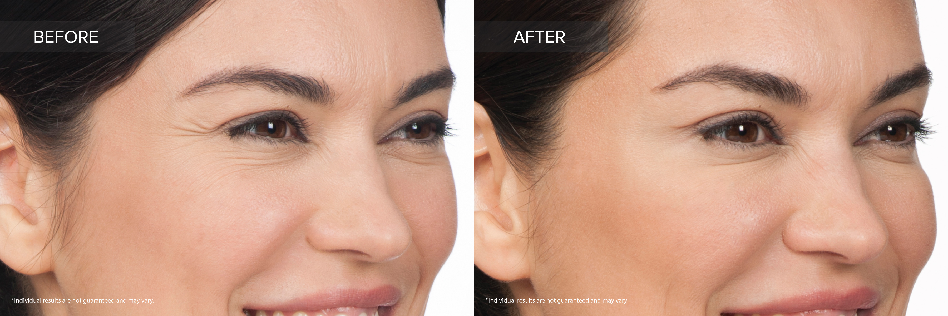 Botox Cosmetic - Moderate Crows Feet