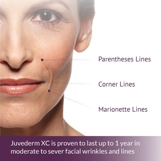 Juvederm Collection of Dermal Fillers | Concierge Aesthetics