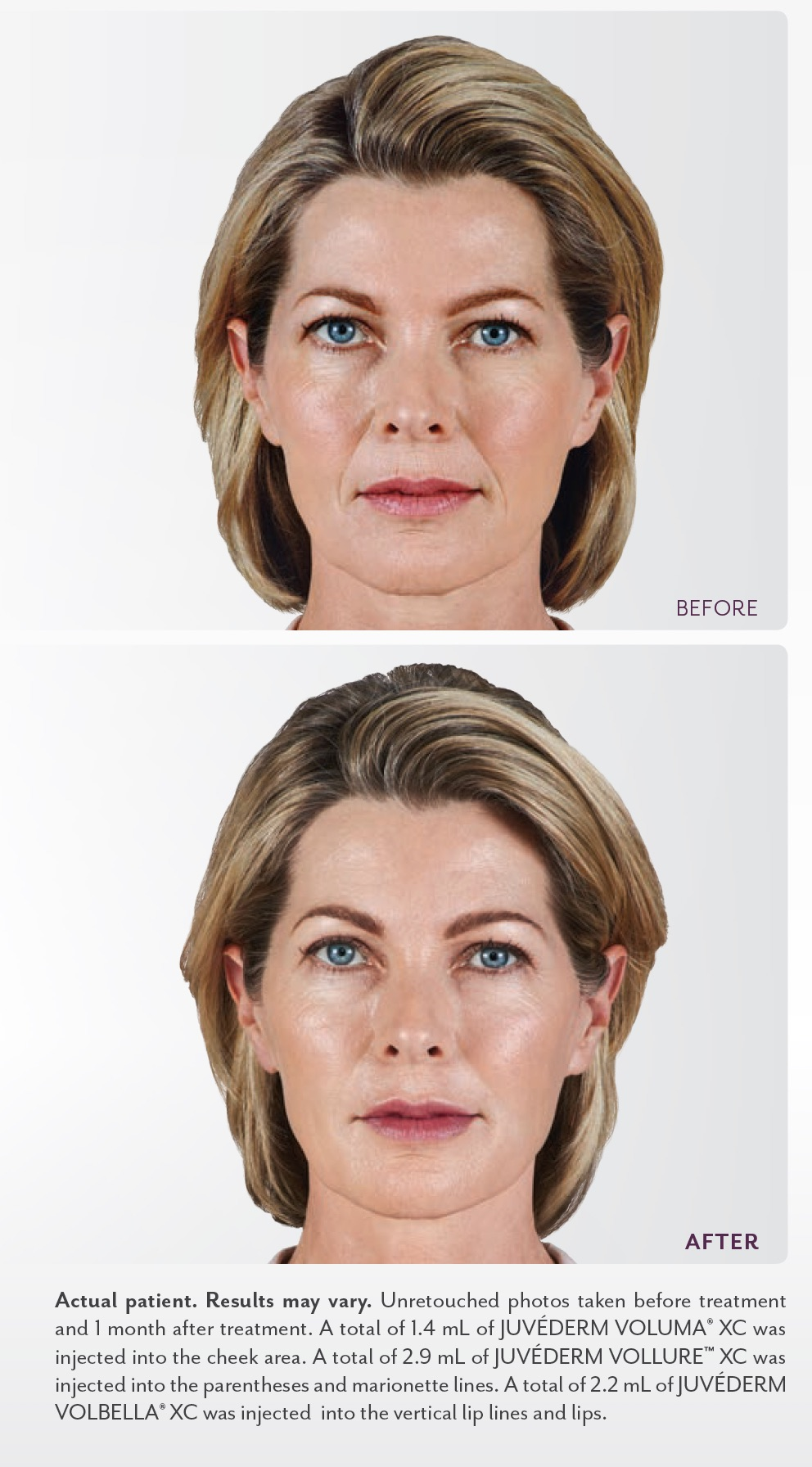 Juvederm Collection - Before and After - Concierge Aesthetics - Irvine