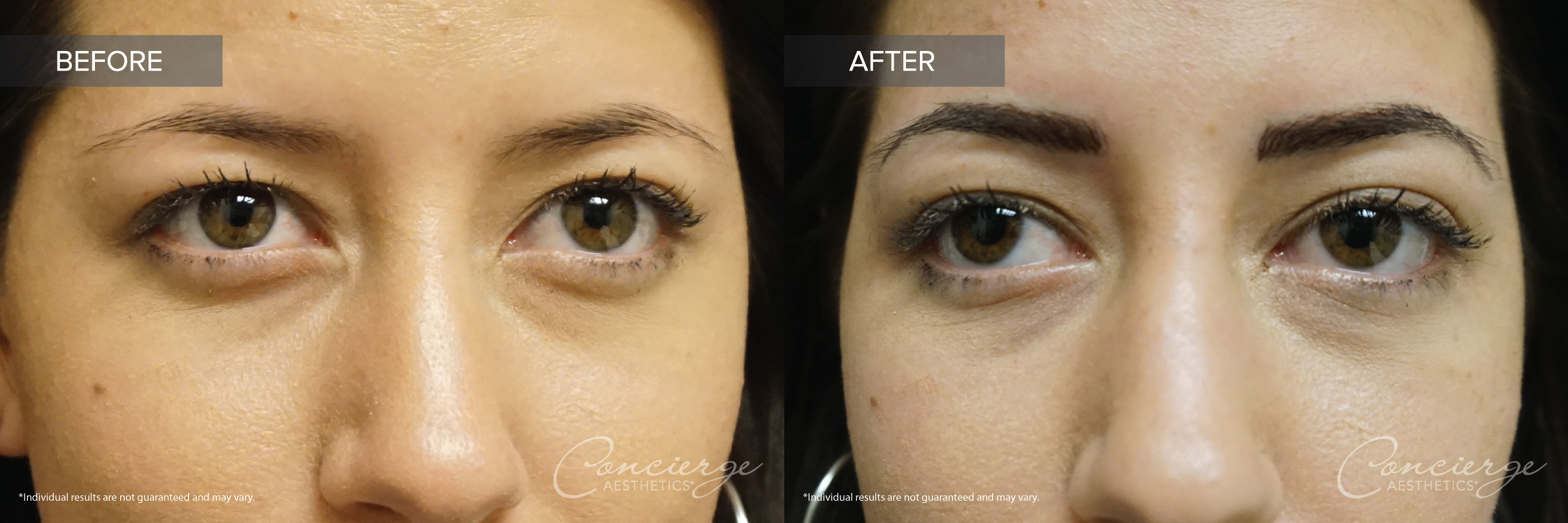 Microblading - Before and After Photos
