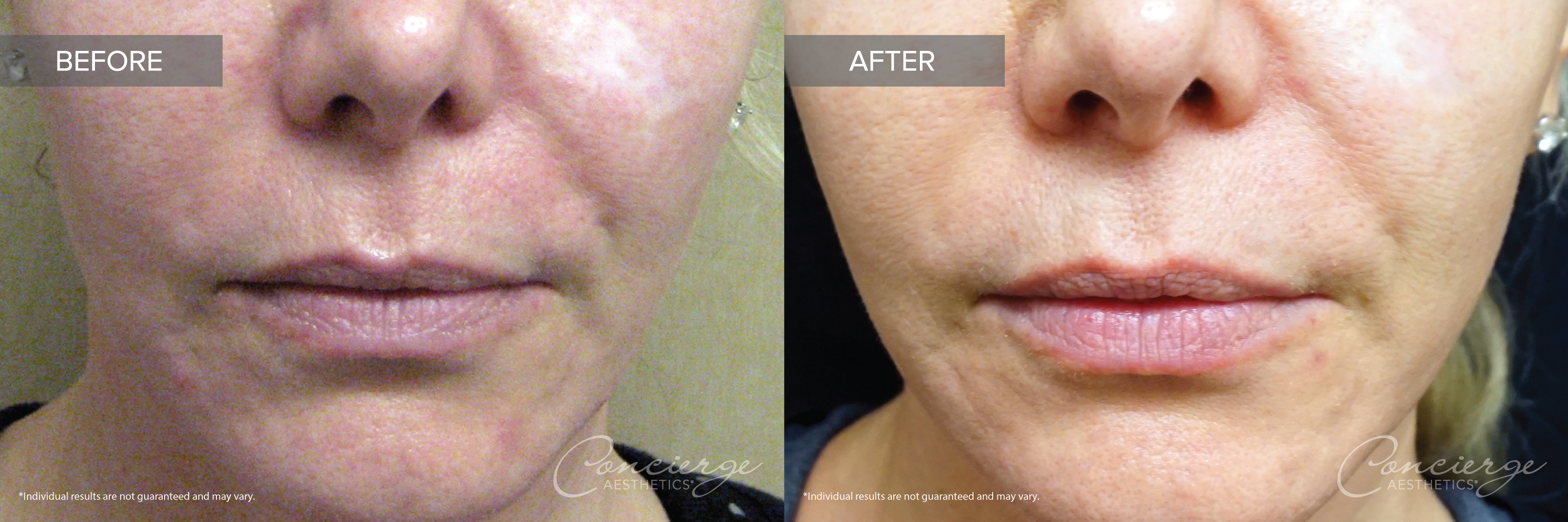 Laser Genesis and IPL Before and After Photos - Concierge Aesthetics - Irvine, CA