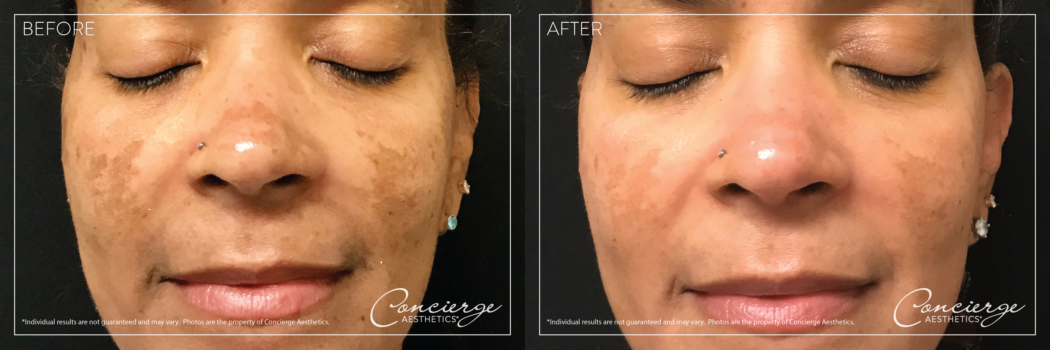 Perfect Derma Peel - Before and After Photos