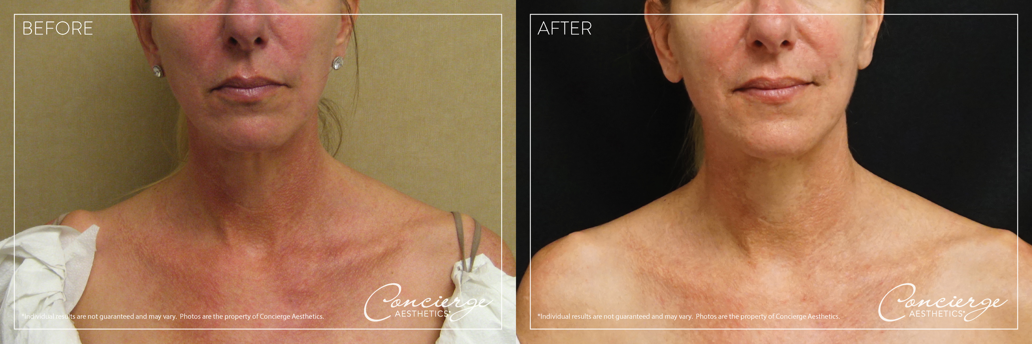 Laser IPL - Photofacial: Treat Sun Damage | Concierge Aesthetics, Irvine