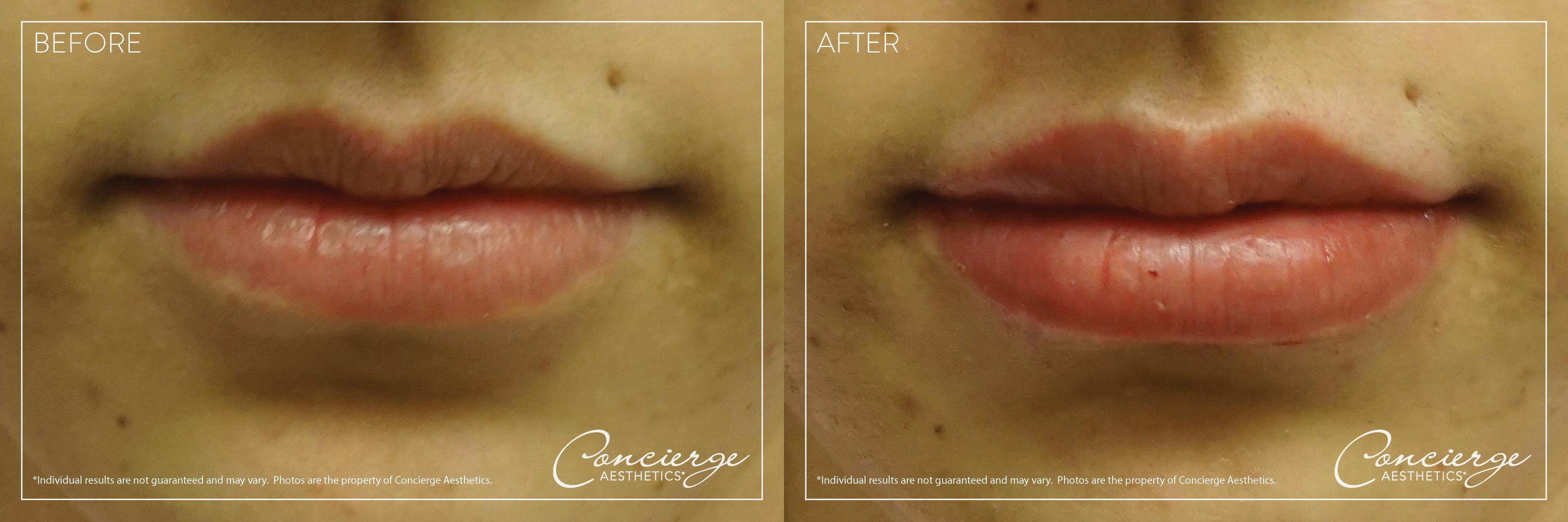 Fuller Lips - Juvederm Ultra XC & Volbella XC | Concierge