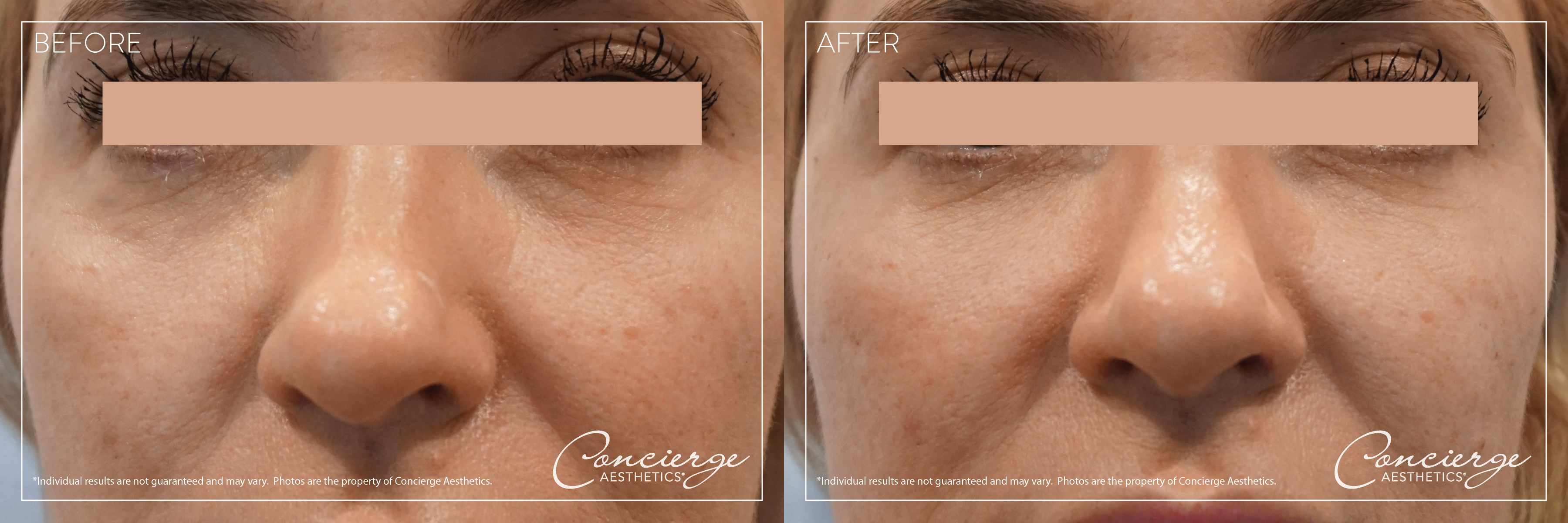 JUVÉDERM Volbella XC - Under the Eyes - Before and After