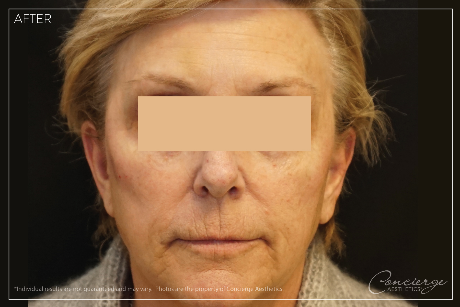 After Photo - Juvederm Voluma and Botox Cosmetic
