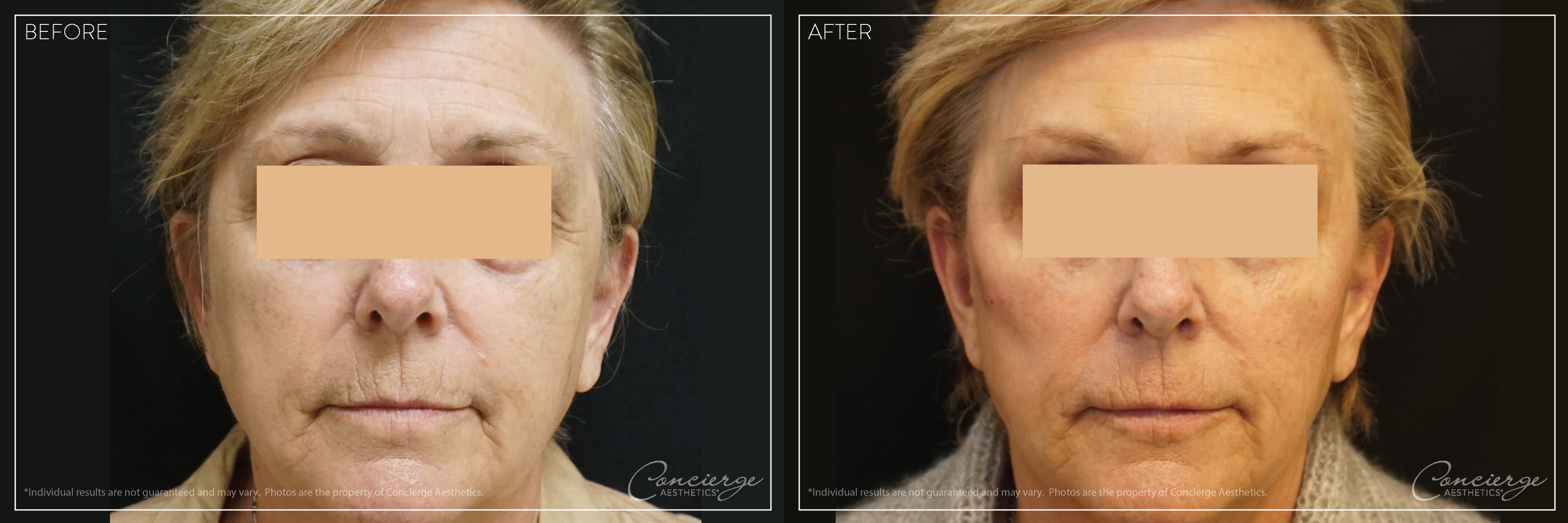 Before and After Photos - Juvederm Voluma and Botox Cosmetic