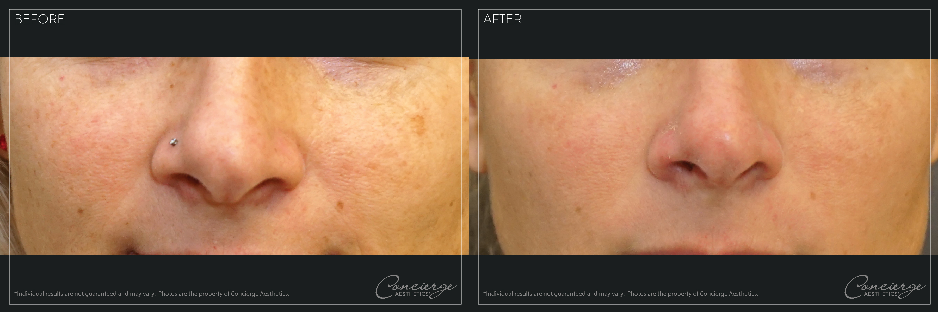Before and After - Laser IPL - Concierge Aesthetics- Irvine