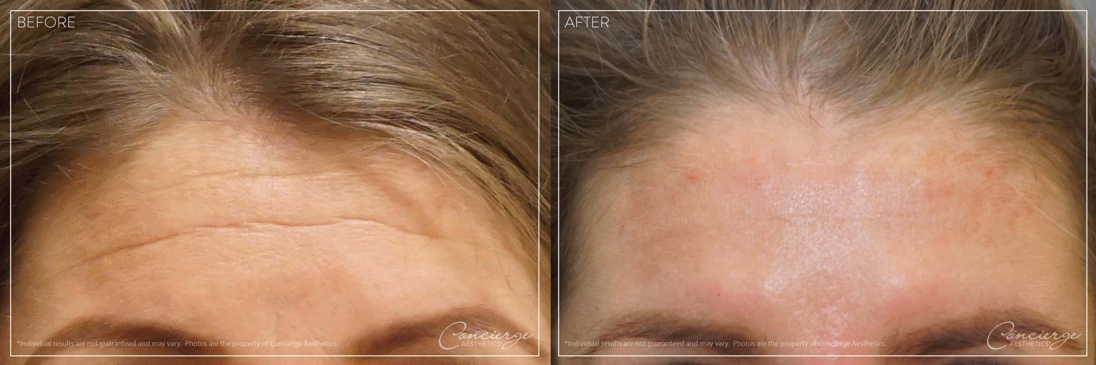 Before + After: Botox Cosmetic - Forehead Lines | Concierge Aesthetics